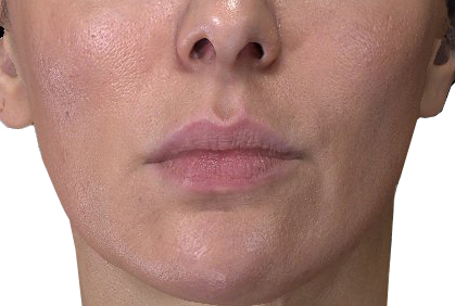 Marija Before Lips Soft BEFORE